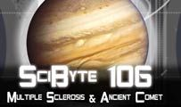 Multiple Sclerosis & Ancient Comet | SciByte 106
