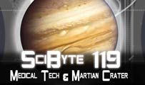 Medical Tech & Martian Crater | SciByte 119